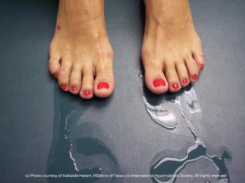 feet always feel hot and sweaty