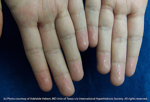 Sweaty Hands - International Hyperhidrosis Society